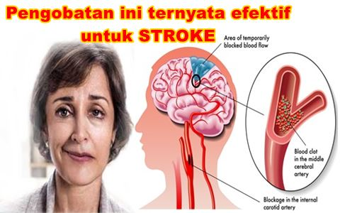 pengobatan alternatif stroke